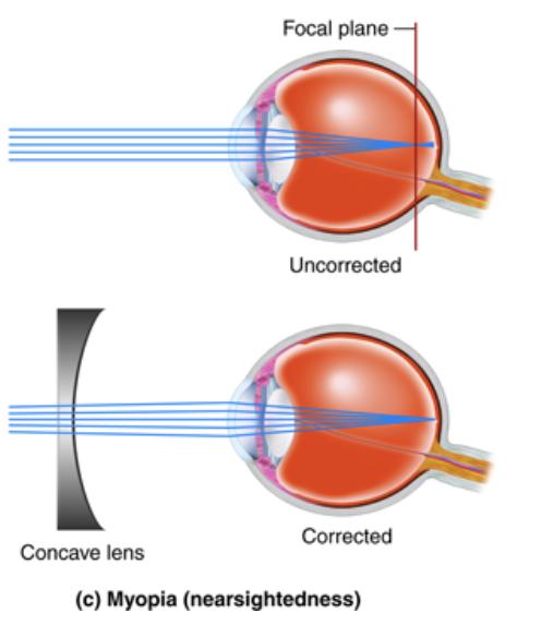 Myopia Diagram
